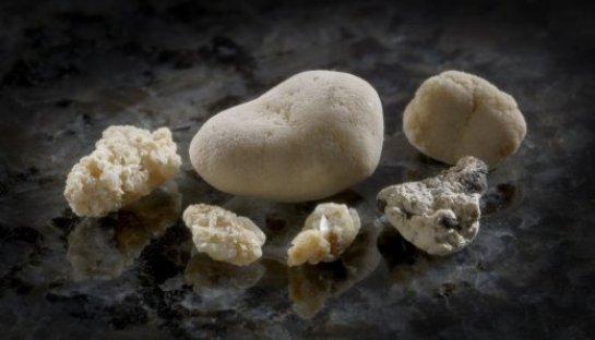 Причины появления камней в почках и профилактика заболевания