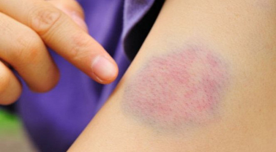 Медики: синяки на теле могут говорить о здоровье