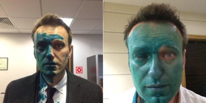 Навальному в Барселоне сделали операцию на правом глазу
