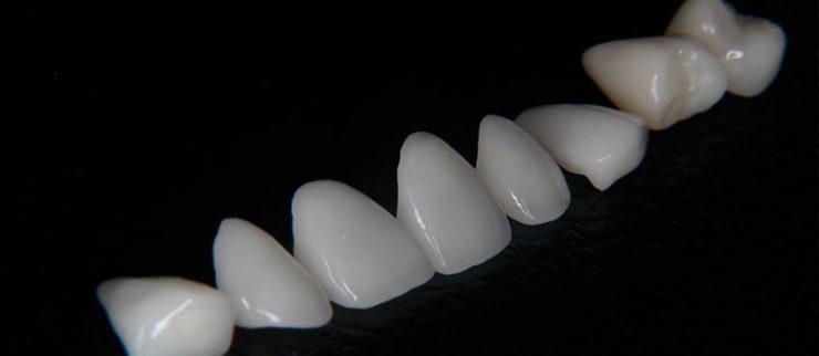 Особенности и случаи применения зубных виниров