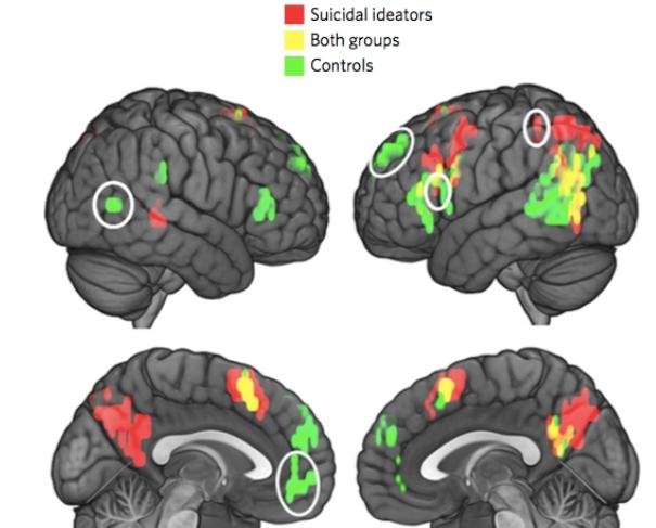 Машинное обучение определило потенциальных самоубийц по активности мозга