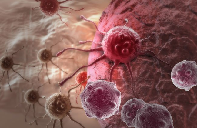 Ученые разработали самый новый метод борьбы слимфомой