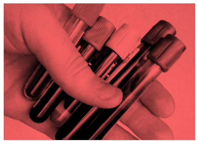 Восемь видов рака научились диагностировать по анализу крови