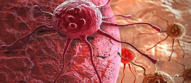 Ученые создали терапевтический гель против рака
