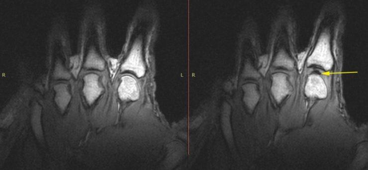 Ученые выяснили, почему пальцы хрустят