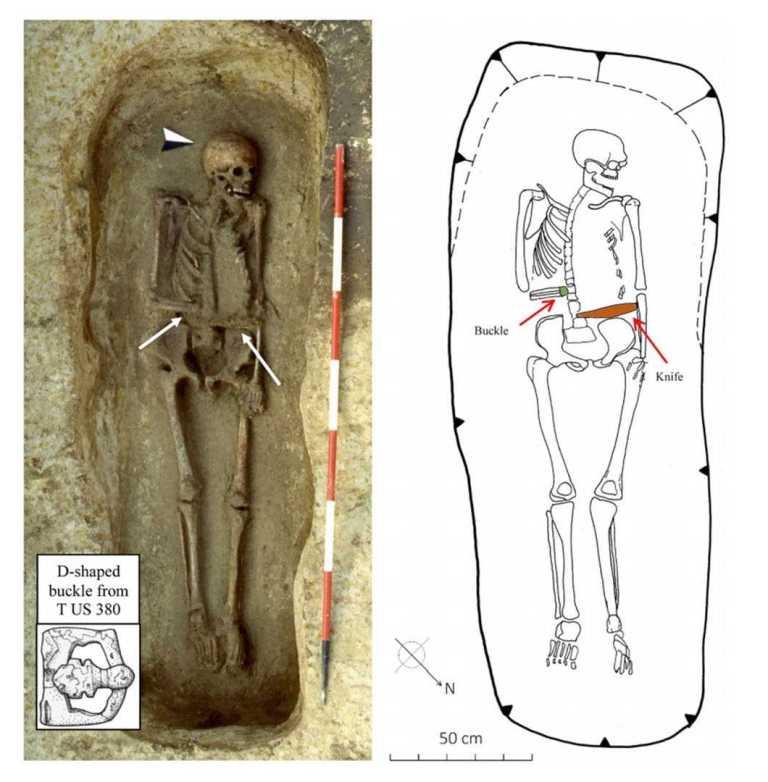 В Италии нашли скелет средневекового мужчины, руку которого заменял нож