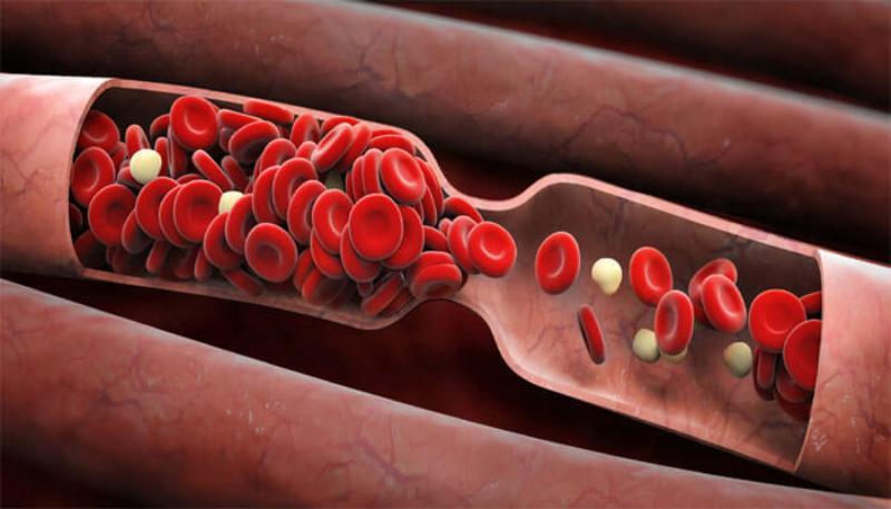 Определена самая смертоносная группа крови человека
