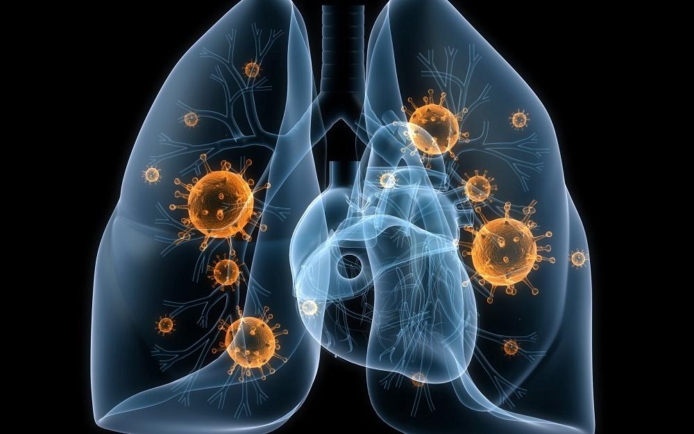 Туберкулез научились диагностировать по выдоху до появления симптомов