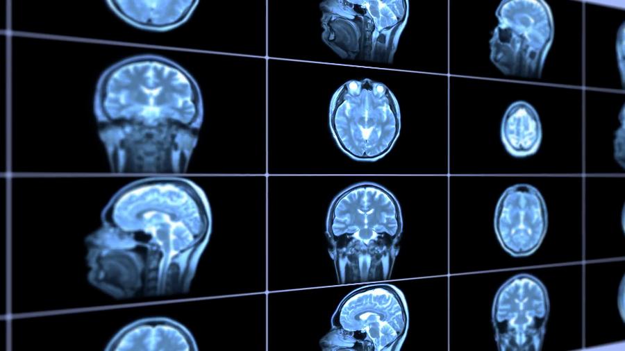 Ученые смогли увидеть пульсацию мозга