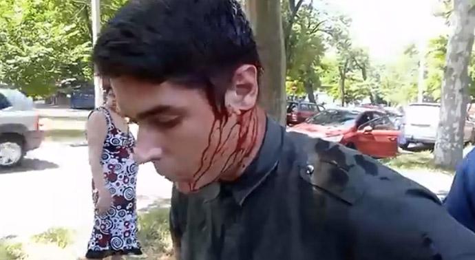 В Одессе лидера местного «Автомайдана» ранили ножом