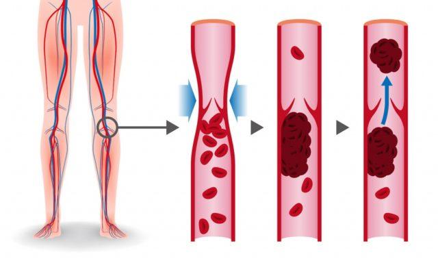 Медики назвали первые признаки тромбоза